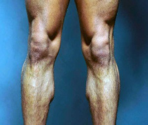 cartilago rodilla desgastado