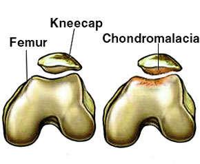 Síntomas de la condromalacia rotuliana y tratamiento