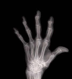 radiografía artrosis en las manos